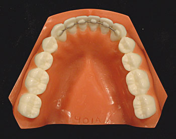 Retainers | The Braces Places